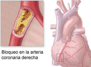 Jugo de Manzana, Apio y Pepino Para Reducir el Colesterol