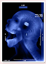 Cómo Crear una Radiografía