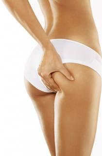 Consejos para Evitar la Celulitis