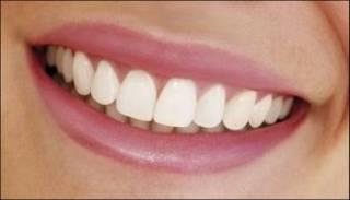 Los Riesgos de una Sonrisa Perfecta