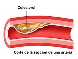 Tres Maneras de Reducir el Colesterol